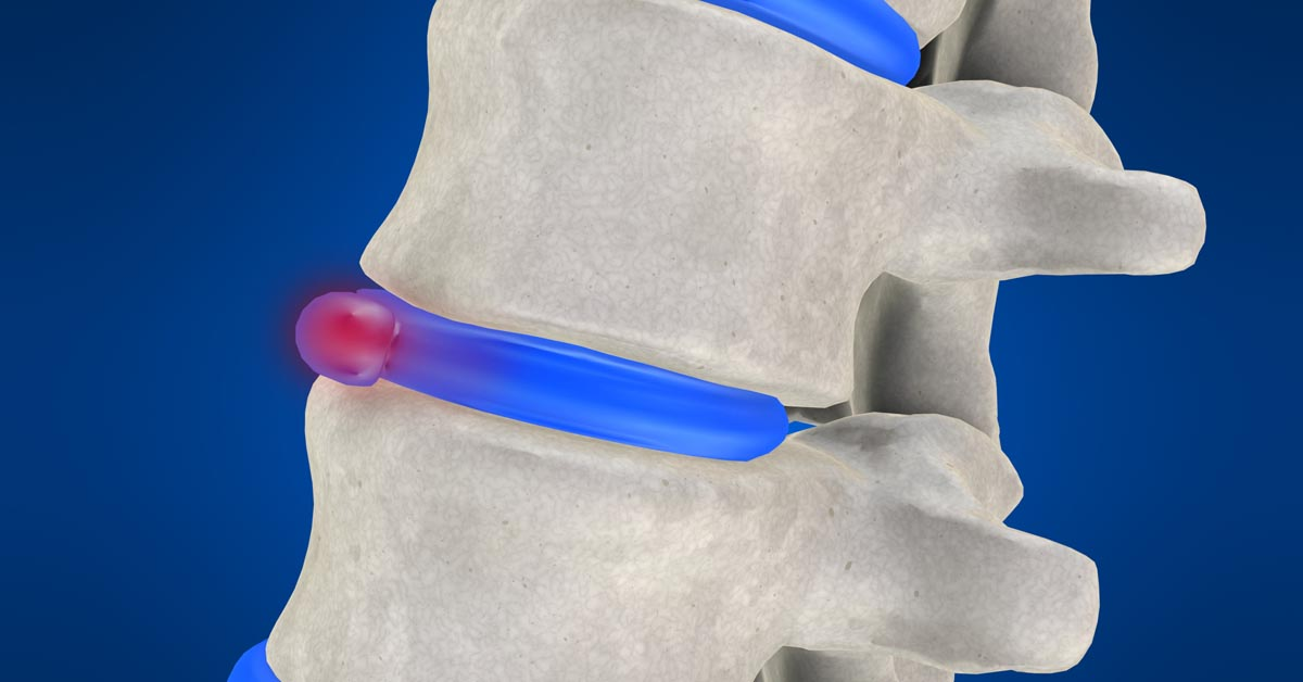 Anchorage non-surgical disc herniation treatment
